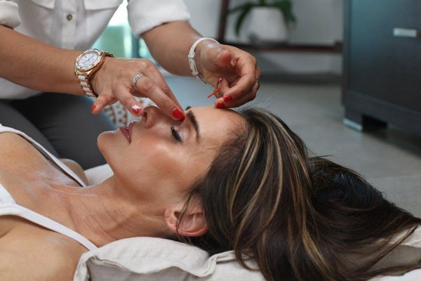 Facial acupuncture Grapevine
