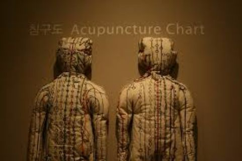 Acupuncture provider Grapevine