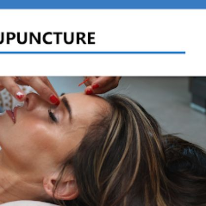 Acupuncture Grapevine-Texas
