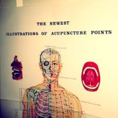 Acupuncture Keller Texas