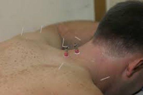 Acupuncture near Keller