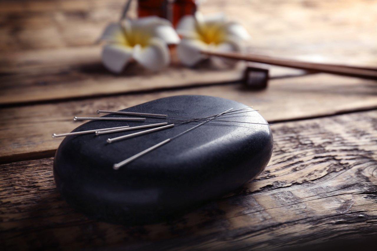 Acupuncture-near-Grapevine-TX