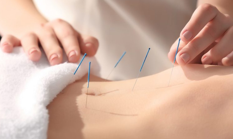 Acupuncture near Grapevine TX