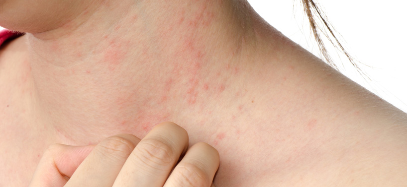 Eczema acupuncture treatment