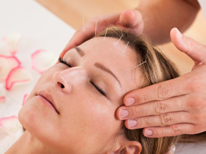 facial-acupuncture Vitality Wellness Clinic