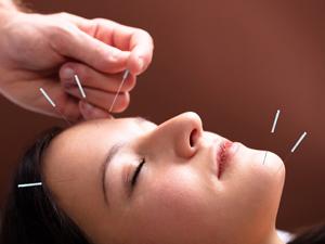 Anti-aging acupuncture