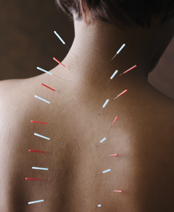 Acupuncture-Southlake-Texas
